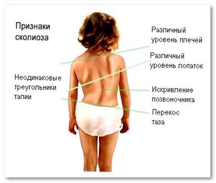 Признаки сколиоза у детей