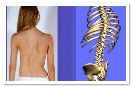 Сколиоз спины