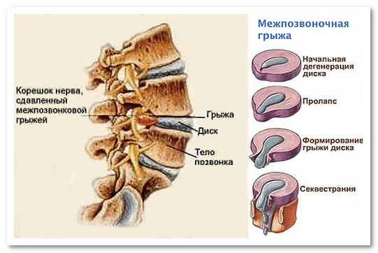 безоперационное увеличение груди крем