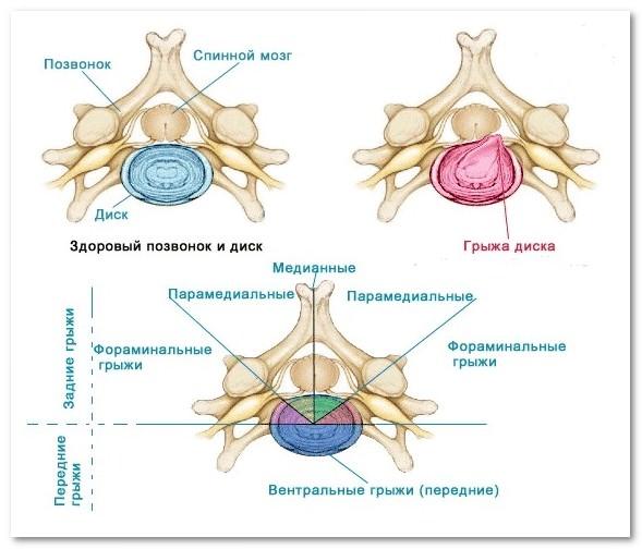 Каковы симптомы обострения простатита?
