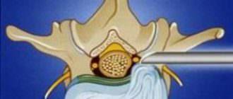 Дорзальные межпозвонковые грыжи диска