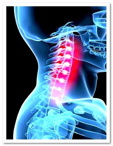 Схема лечения остеохондроза шейного отдела