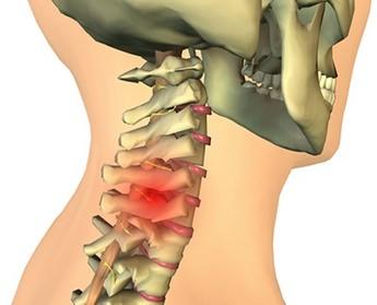 Причина межпозвоночной грыжи шейного отдела позвоночника лечение