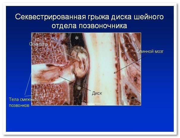 межпозвоночная грыжа шейного отдела