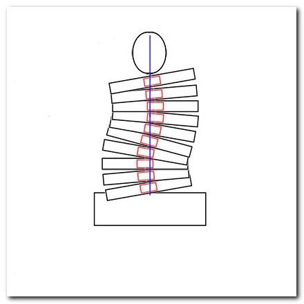 сложные формы сколиоза
