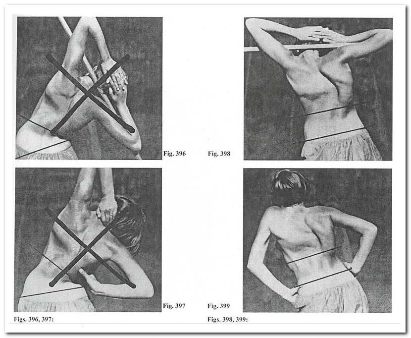 Реклинатор ортопедический ро тривес т-1703