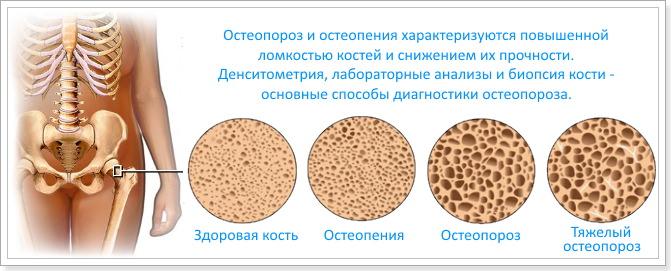 препараты эффективные от паразитов форум