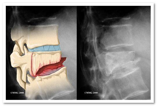 компрессионный перелом грудного отдела