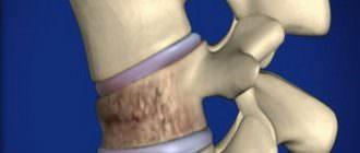 Компрессионный перелом грудного отдела позвоночника и его лечение