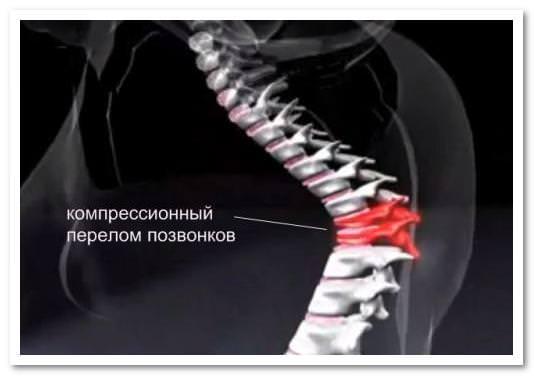 Компрессионный перелом возникает при одновременном сжатии позвоночника и его наклоне вперед