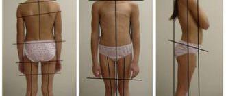 лечение сколиоза лфк