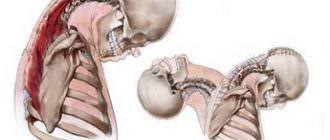 Симптомы и лечение травм шейного отдела позвоночника