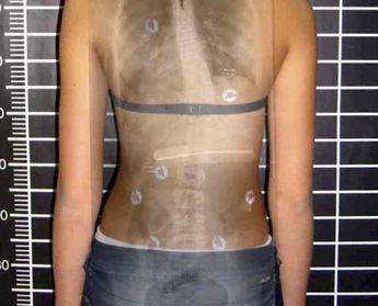 Сколиоз позвоночника 3 степени лечение без операции
