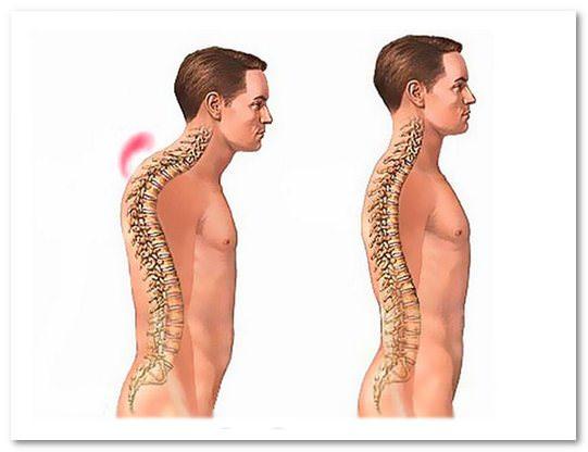 симптомы перелома грудного отдела