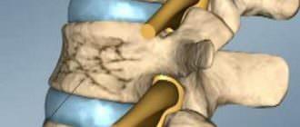 Симптомы и лечение перелома поясничного отдела