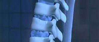 симптомы и лечение грыжи шморля