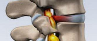 Симптомы и лечение грыжи грудного отдела