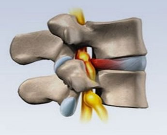 Лечение грыжи грудного отдела без операции. Грыжа грудного отдела позвоночника