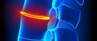 Симптомы и лечение задней медианной грыжи диска
