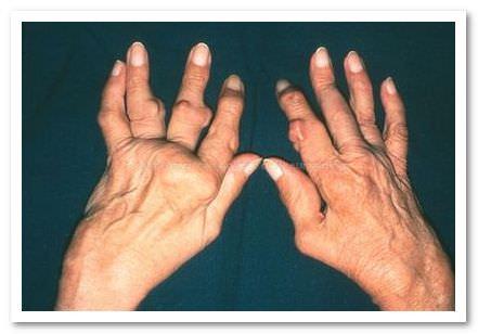 ревматоидный полиатрит