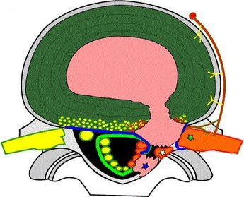 Секвестрированная грыжа позвоночника, симптомы, лечение. Узнать больше о Секвестрированная грыжа позвоночника, симптомы, лечение. Жмите.
