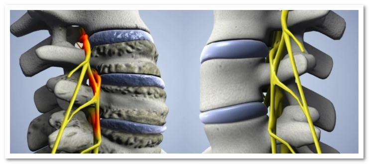 Артроз шейного отдела позвоночника: причины и лечение