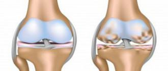 мази при артрозе коленного и плечевого суставов