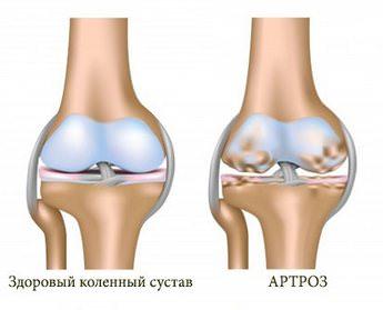 Мази при артрозе коленного сустава (гонартроз): список эффективных средств для лечения