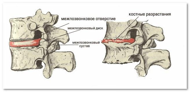 боли в мышцах и остеохондроз