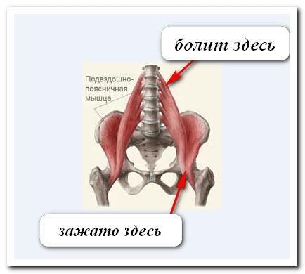 Боли в спине и шее причины