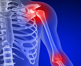 Как нужно лечить артроз плечевого сустава