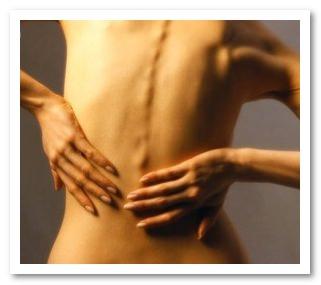 Почему сводит мышцы спины?