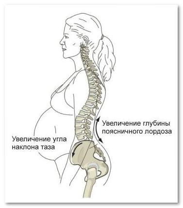 Как облегчить боль в спине во время беременности