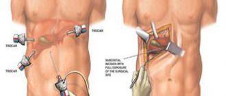 Причины боли в спине в области подреберья