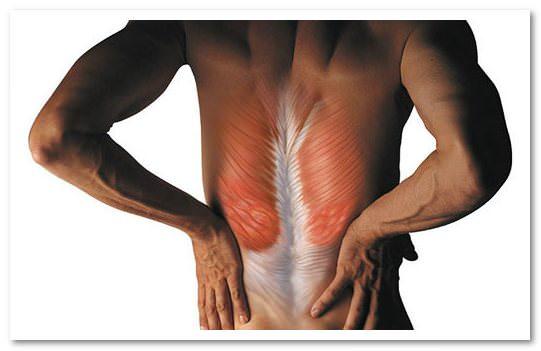 Остеохондроз и напряжение в пышцах