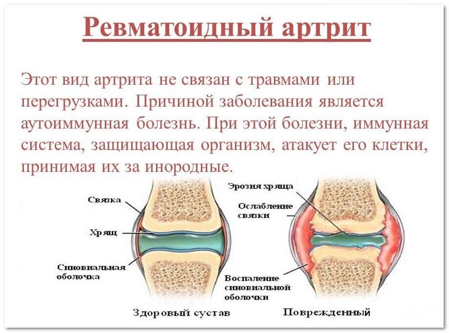 ревматоидный артрти в пояснице