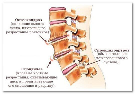 Артроз позвоночника (спондилоартроз): причины, симптомы и лечение