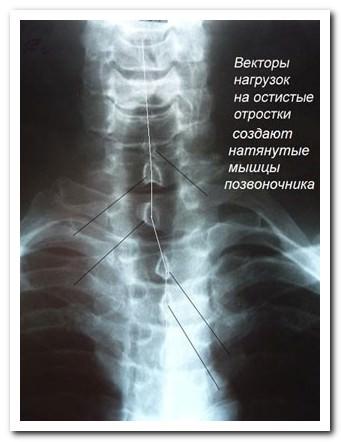 Боли в спине и спондилоартроз