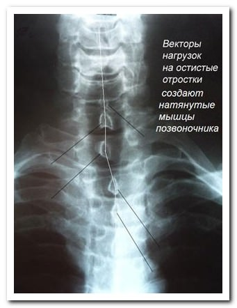 Боль от Наклонов нащад