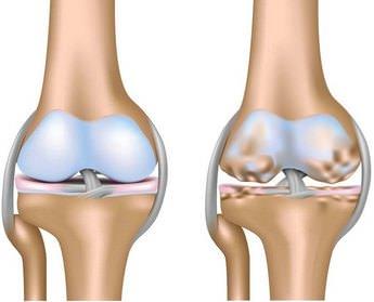 МРТ коленного сустава как делается и что показывает