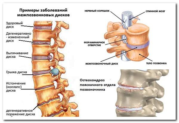 Боли в спине утром: какие могут быть причины, как лечить