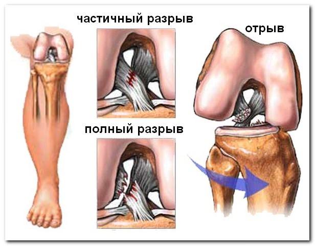 повреждение связок коленного сустава лечебная гимнастика