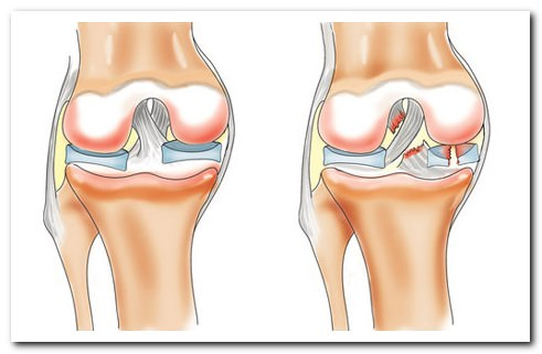 Как делается мрт коленного сустава видео?