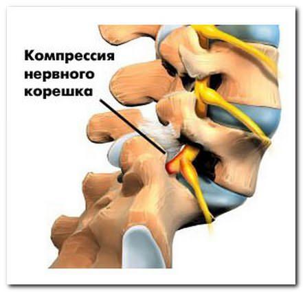 Смещение дисков позвоночника поясничного отдела лечение
