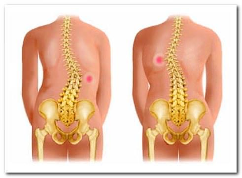 сколиоз болит грудь и спина