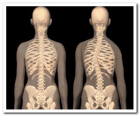 боли в грудном отделе из-за сколиоза