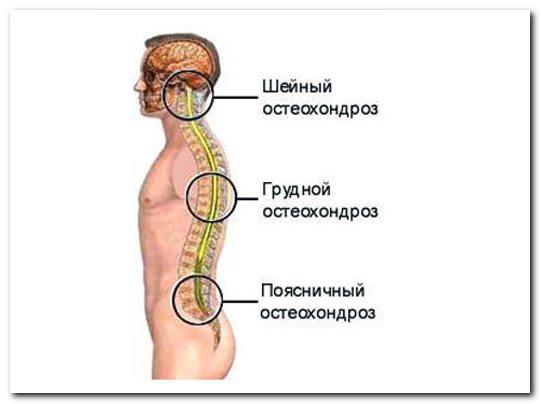 хондроз шейного и грудного отделов