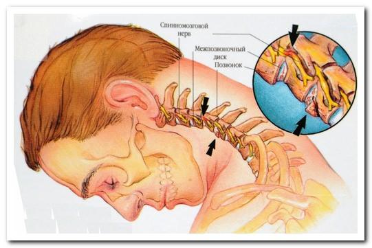 лечение головокружений при остеохондрозе