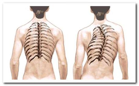 При падении ассиметрия лопаток и плеча