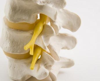 Стеноз позвоночного канала поясничного отдела – причины и следствие, характерные симптомы